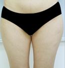 韩国友珍整形大腿吸脂术对比图
