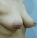 韩国友珍整形乳房缩小术对比图