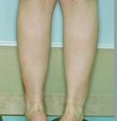 韩国友珍整形小腿缩小术对比图