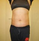 韩国友珍整形腰腹吸脂对比图