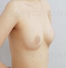 韩国友珍整自体脂肪丰胸前后对比图