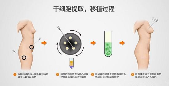 干细胞隆胸