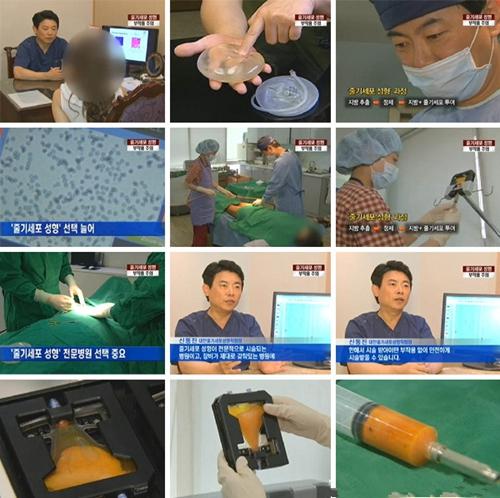 干细胞移植隆胸