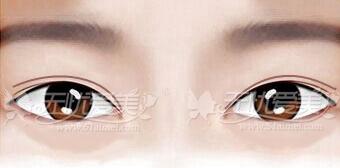 双眼皮形状不美