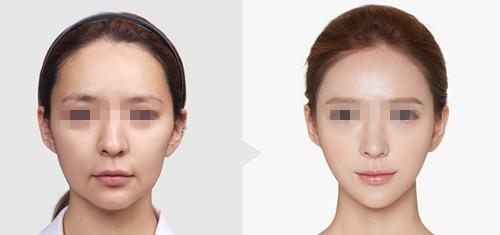 韩国TL整形医院面部提升案例