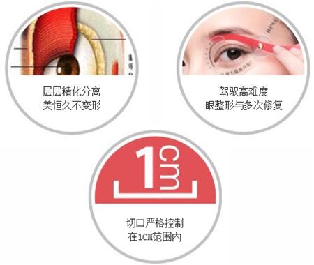 韩式双眼皮