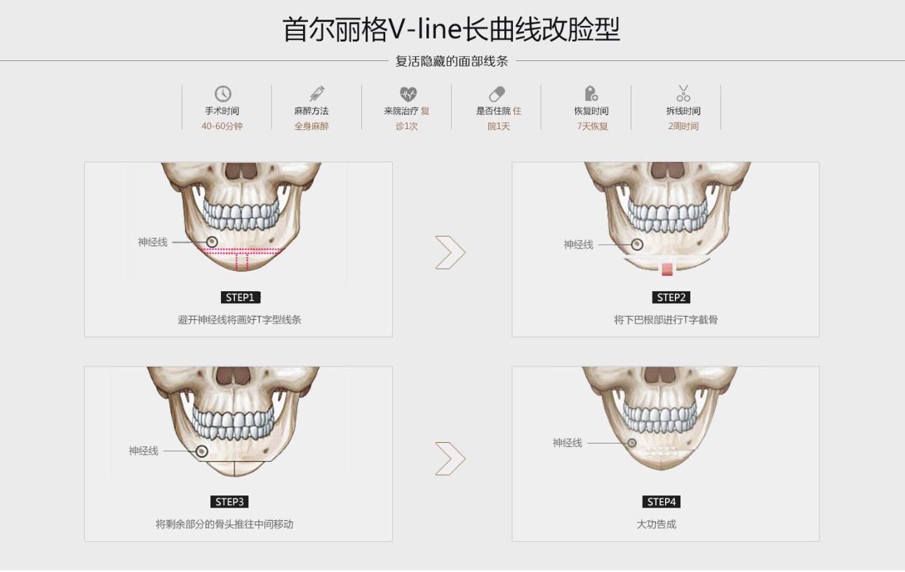 V-line长曲线改脸型