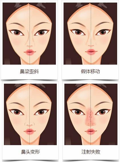 上海华美隆鼻修复