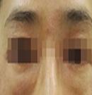 上海古北悦丽整形去眼袋案例对比图