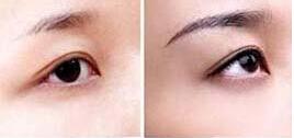绣眉术前术后对比图