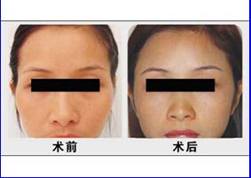 面颊部填充术术前术后对比图