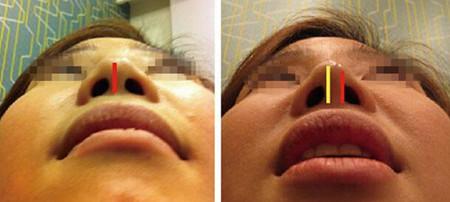 温州星范康欣隆鼻术