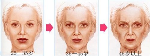 面部年轻化手术