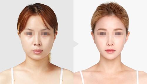 面部提升案例