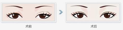 大同美神双眼皮