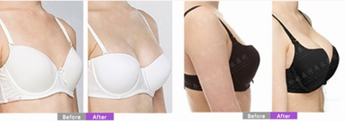 自体脂肪移植丰胸案例