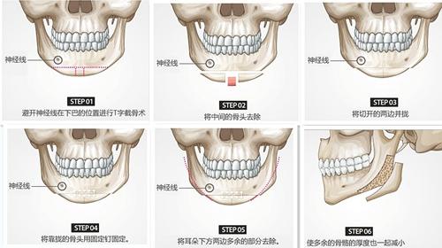北京亚馨美莱坞V-arc四方脸手术