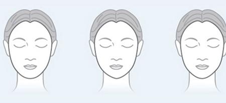 北京亚馨美莱坞改脸型