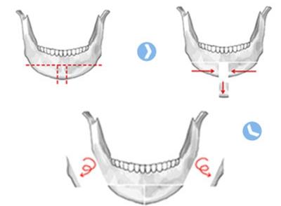 下巴尖手术—T字截骨