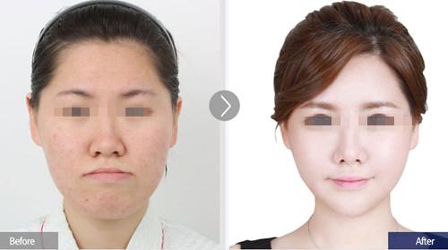 韩国FACE-LINE整形医院案例