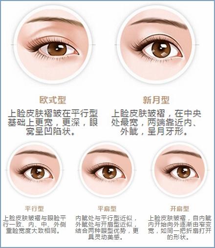 【韩式三点式双眼皮