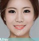 颧骨缩小+v-line手术 重返年轻容颜