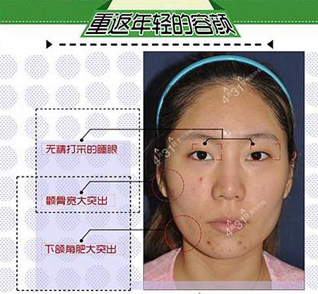 颧骨缩小+v-line手术