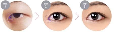 韩式双眼皮、开内外眼角手术