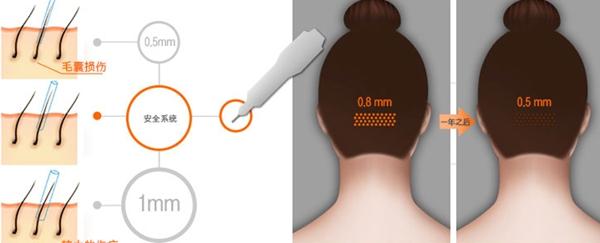毛囊损伤最小化