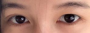 双眼皮失败表现之一:左右不对称