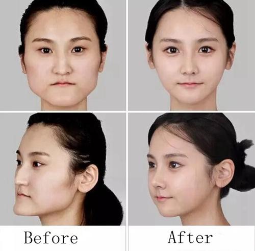脸部整形前后对比案例