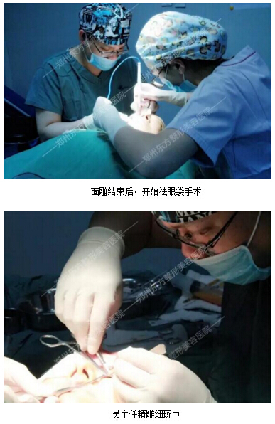 郑州东方整形案例