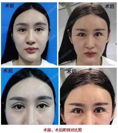 郑州东方双眼皮修复