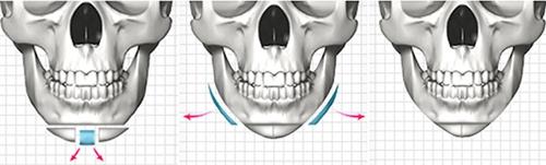 下颌角手术+T切骨术