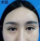 妹子在郑州东方整容后变身网红神似芭比娃娃