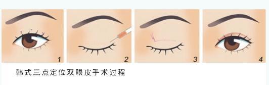 昆明梦想整形医院韩式三点双眼皮手术