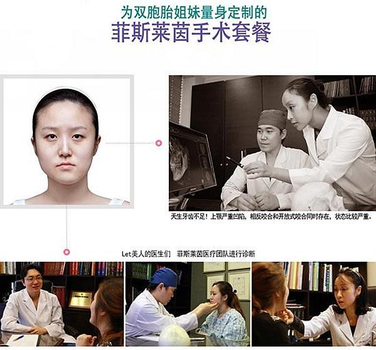 面部轮廓 双鄂手术