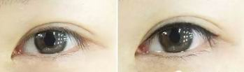 雅美眼部奢华套餐,给你'一汪春水'的迷人眼