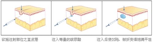 玻尿酸注射除皱原理
