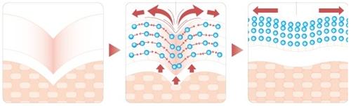 胶原蛋白注射除皱原理