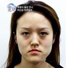 在韩国菲斯莱茵双鄂+下巴整形后拥有巴掌脸