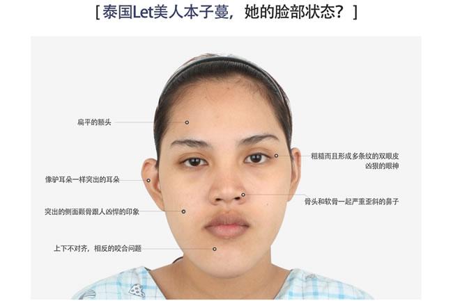 面部轮廓+鼻整形