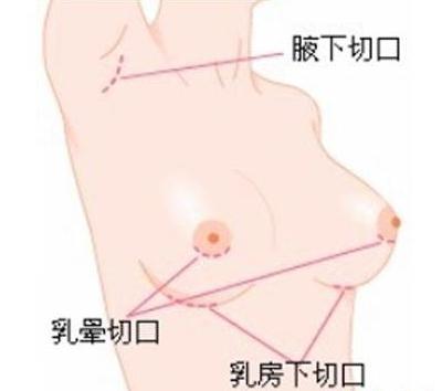 假体隆胸切口