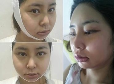 脂肪填充+下颌角手术