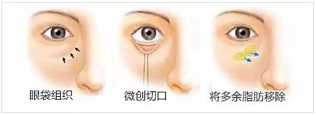 福州海峡去眼袋手术示意图