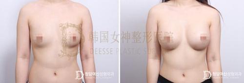 韩国女神整形医院假体隆胸案例
