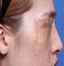 韩国女神整形医院驼峰鼻整形案例