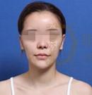 韩国女神整形医院下巴整形、颧骨缩小术案例