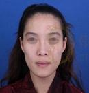 韩国女神整形医院自体脂肪填充案例