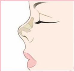 义乌张小红鼻综合整形